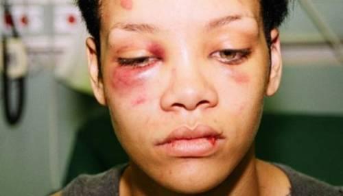 Foto do dia da agressão sofrida pelo então namorado, Chris Brown
